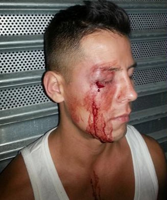 Gay bashing pictures