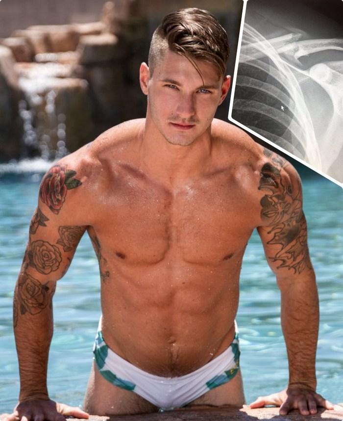 Clark Parker Gay Porn Star Broken Collarbone