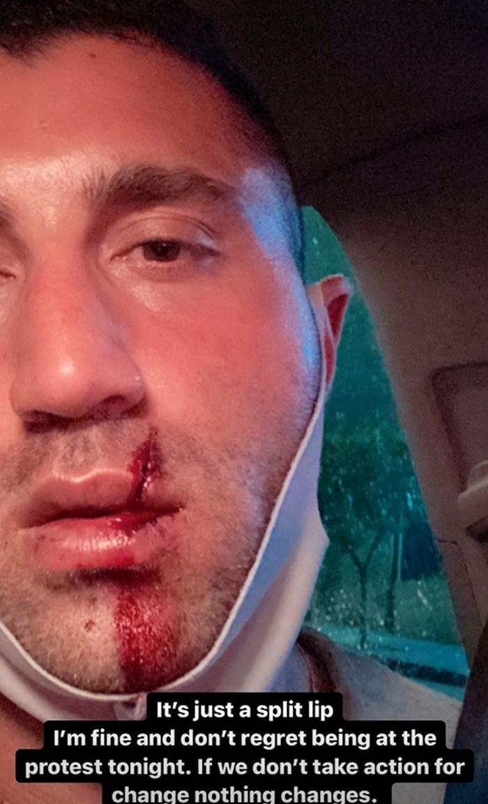 Actor Porno Sharok gay porn star sharok got hita hammer in the mouth at